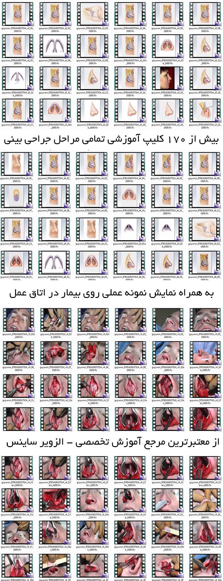 آموزش جدیدترین متدهای جراحی بینی
