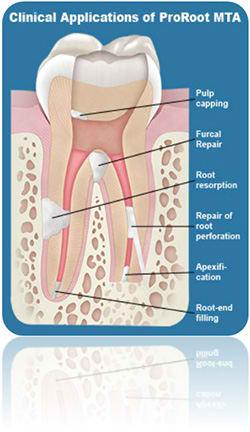 کابرد ام تی ای در دندانپزشکی